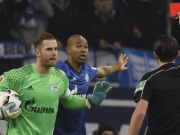 Topleistung in Unterzahl: Schalke verliert nach Blitz-Rot fuer Naldo
