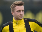 Hoffen auf Reus – BVB gegen Monaco gefordert