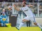 Dybala verletzt - Higuain wie einst Trezeguet