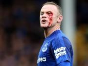 Rooney blutüberströmt - Niasse rettet Everton!