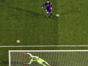 Messis Alu-Allergie - Rabona-Ärger bei Suarez