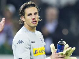 Zog sich gegen Manchester City einen Nasenbeinbruch zu: Gladbach-Keeper Yann Sommer.