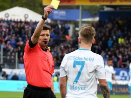 Vier Schalkern droht eine Sperre fürs Saisonfinale