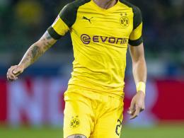 Darum spielte der BVB ohne Trikotsponsor